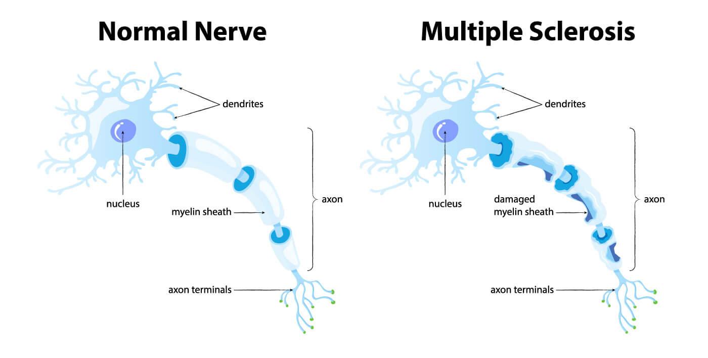normal nerve vs multiple sclerosis